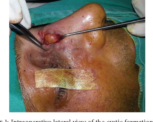 Figure 1 from The Development of Dorsal Nasal Cyst Formation
