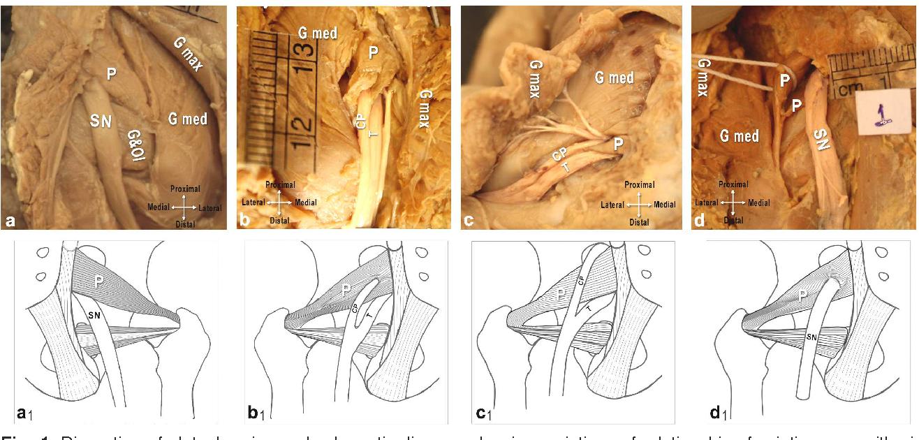 PDF] Morphological variations of sciatic nerve and