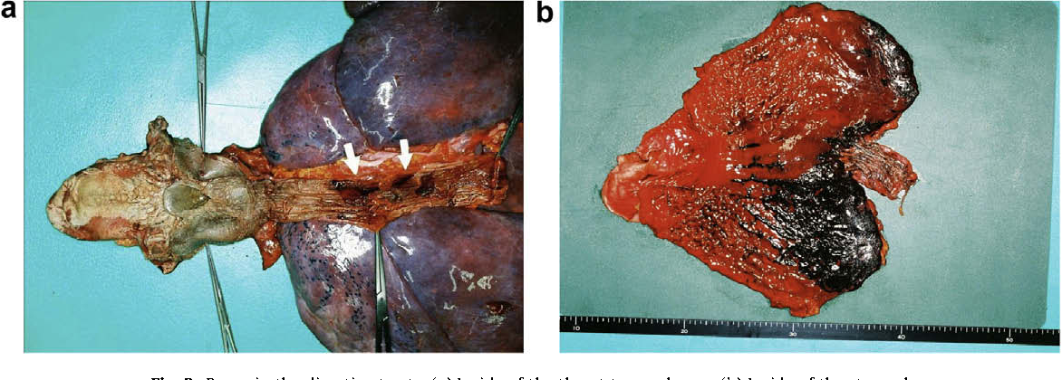 Figure 1 from An autopsy case of chemical burns by ...