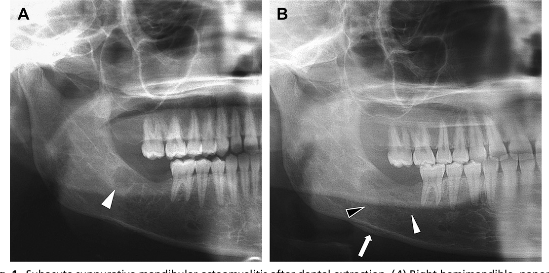 Figure 1 From How Can We Diagnose And Treat Osteomyelitis Of The Jaws As Early As Possible Semantic Scholar