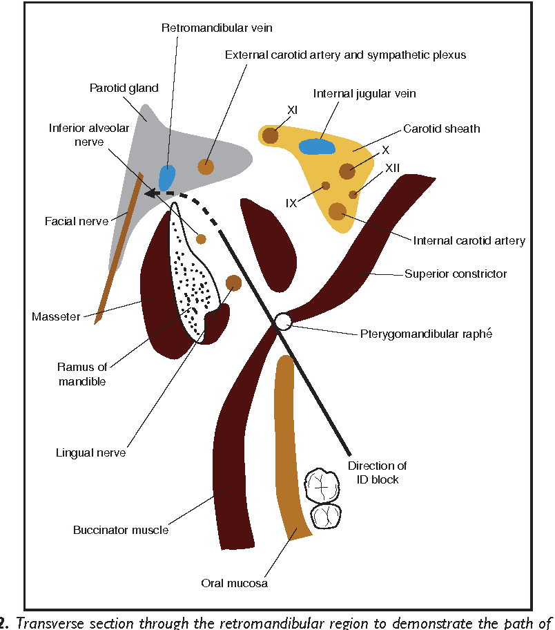 Figure 2 from Neurological complications of local