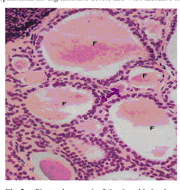 Figure 2 From Gross And Microscopic Anatomy Of Thyroid Gland Of