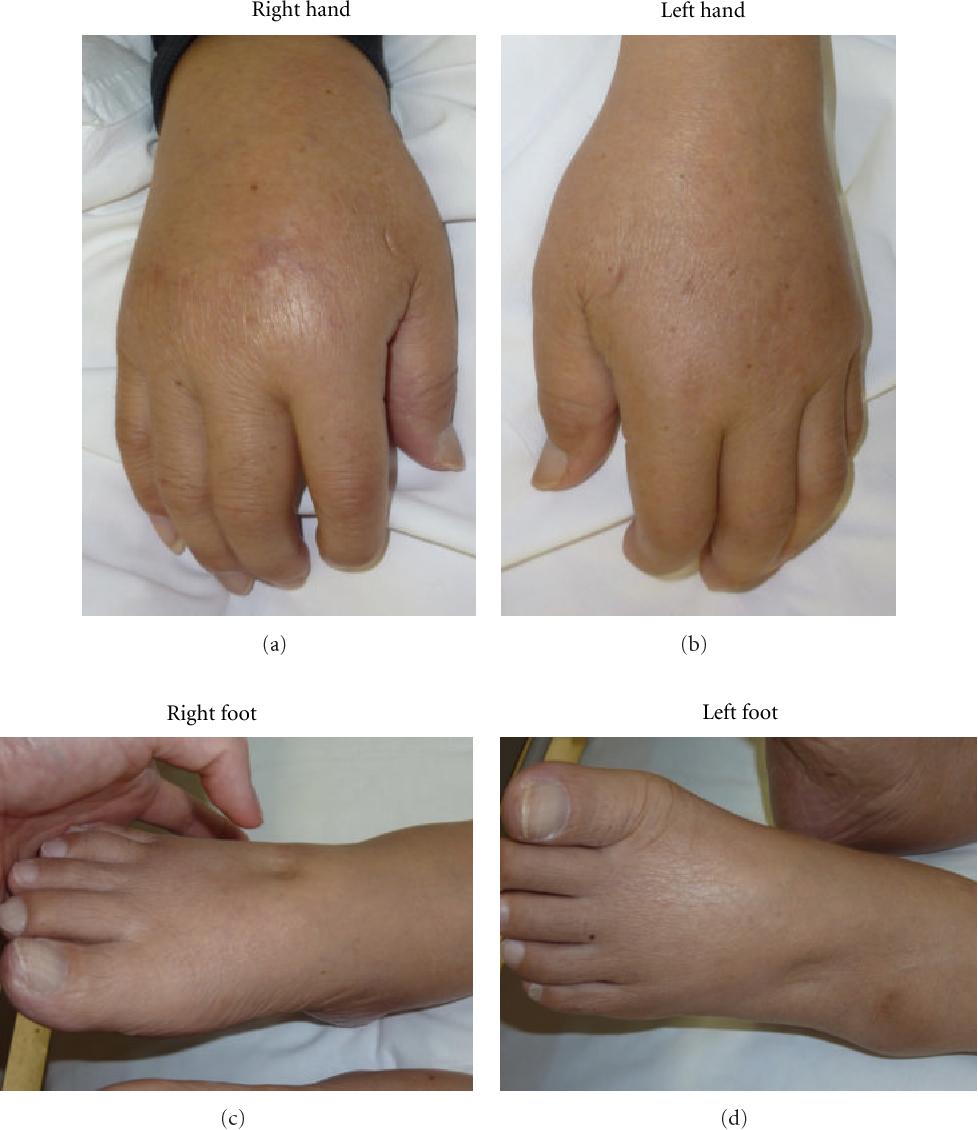 PDF] Remitting Seronegative Symmetrical Synovitis with
