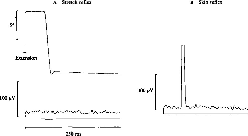 PDF] Manual motor performance in a deafferented man.   Semantic ...