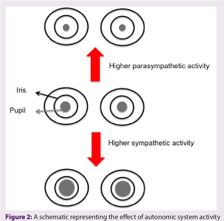 PDF] The Utility of Iris-pupillary Area Ratio as a Non