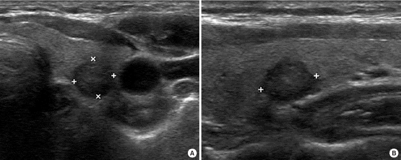 Pdf Ultrasonographic Characteristics Of The Follicular Variant Papillary Thyroid Cancer According To The Tumor Size