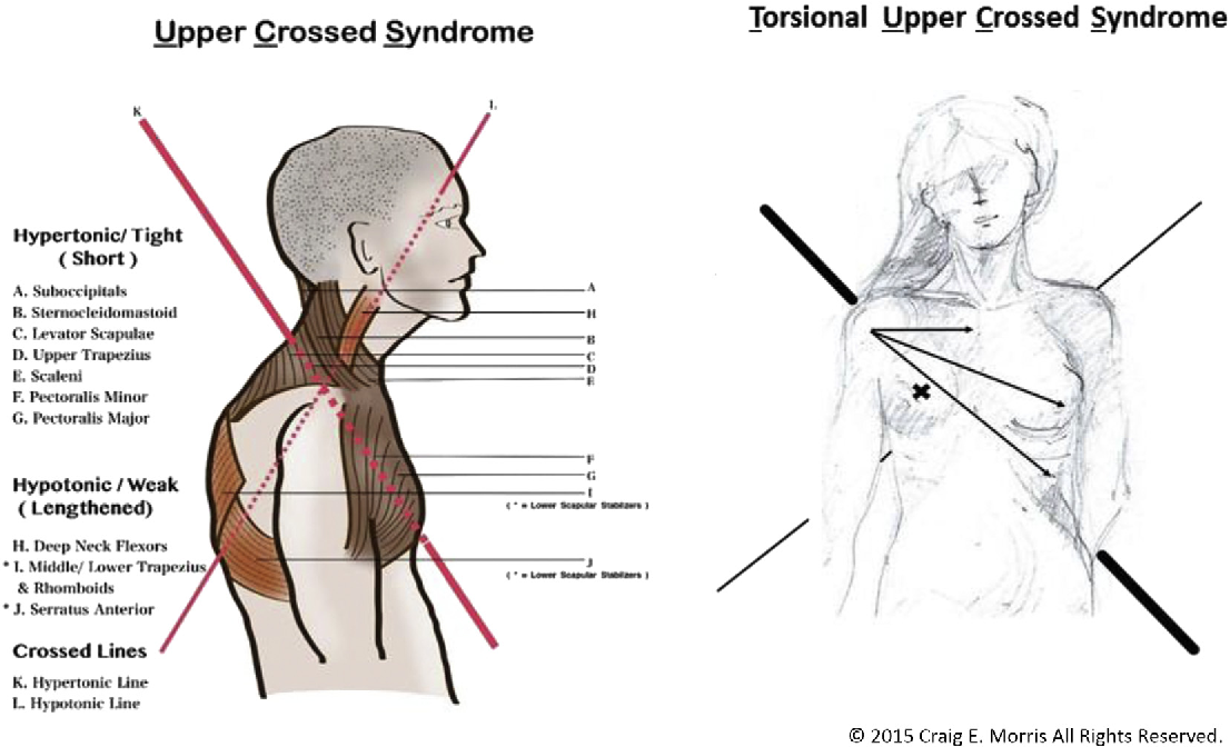 Pdf The Torsional Upper Crossed Syndrome A Multi Planar Update To Janda S Model With A Case Series Introduction Of The Mid Pectoral Fascial Lesion As An Associated Etiological Factor Semantic Scholar