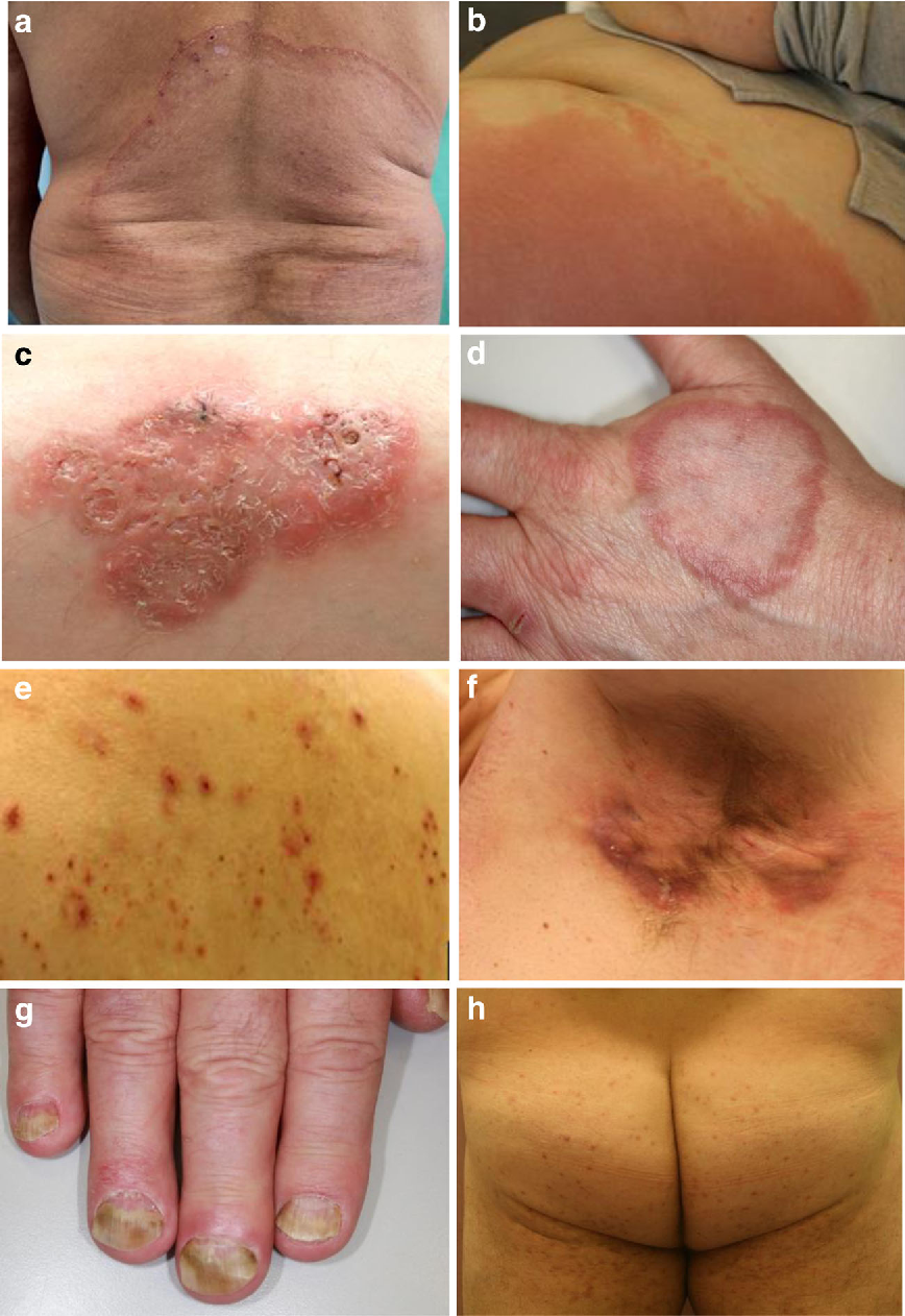 Figure 1 From Diabetes Mellitus And The Skin Semantic Scholar