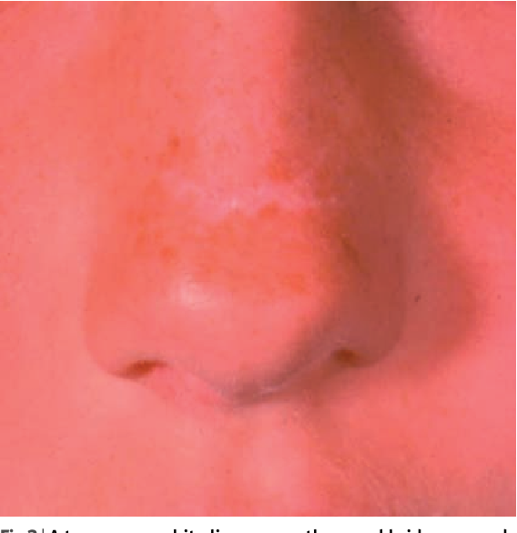 Figure 3 From Allergic Rhinoconjunctivitis In Children