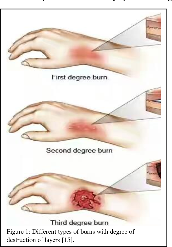 Figure 1 from A review on burn and burn models in animals