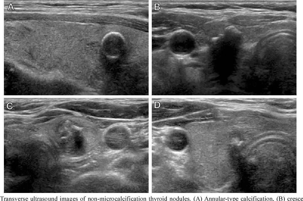 Pdf Relationship Between Patterns Of Calcification In Thyroid