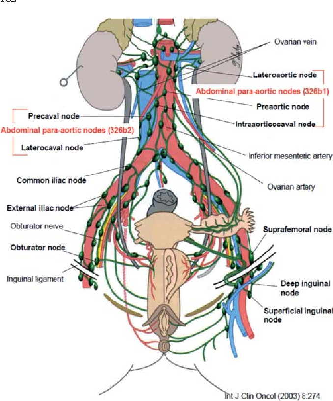 Management Of Retroperitoneal Lymph Nodes In The Treatment Of Ovarian Cancer Semantic Scholar