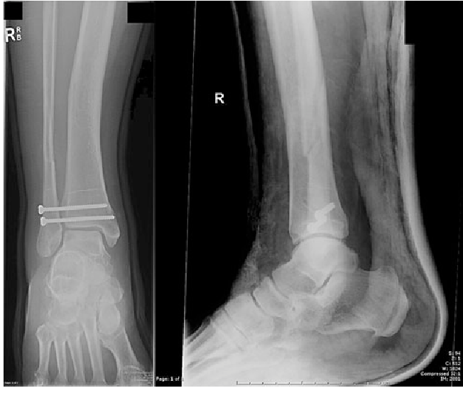 An unusual presentation of tibial plafond fracture post