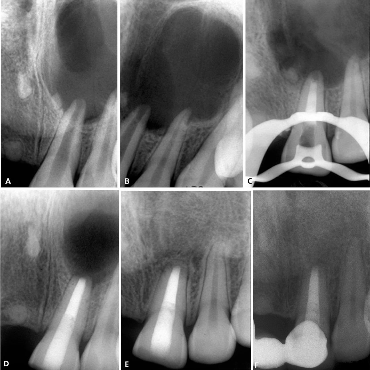 Endodontic treatment options after unsuccessful initial root