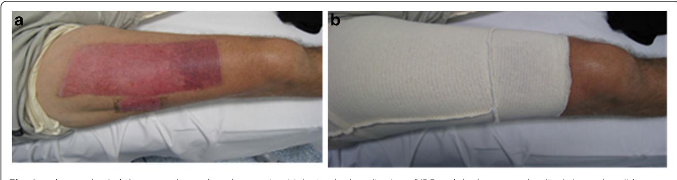 Figure 1 From Interim Pressure Garment Therapy 4 6 Mmhg