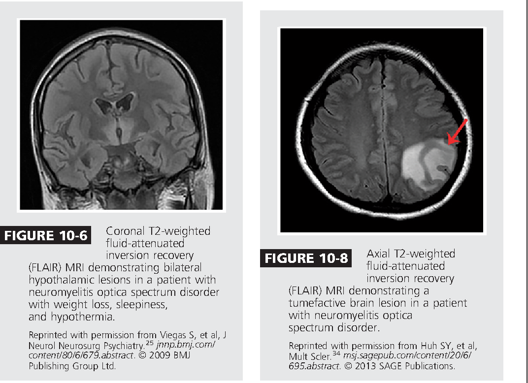 Figure 10-8 from Neuromyelitis Optica Spectrum Disorders