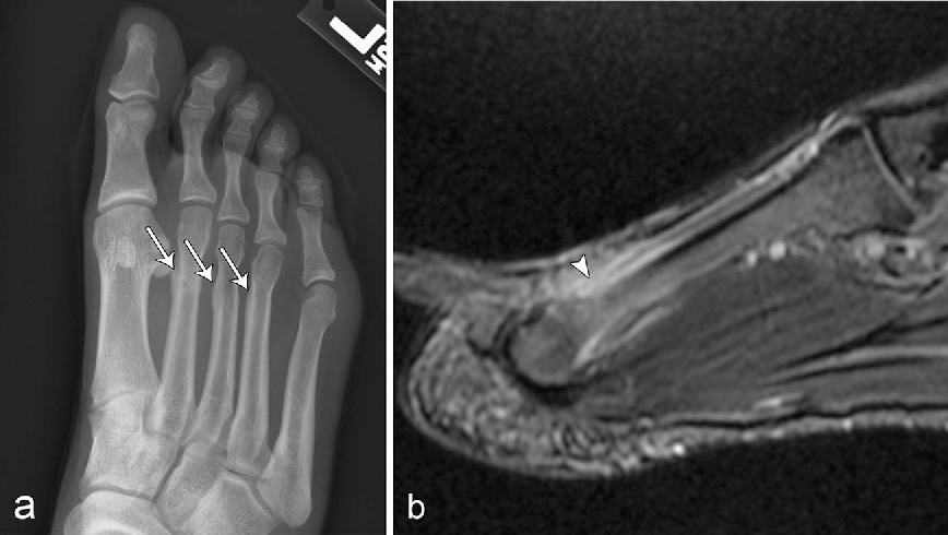 Figure 2 from Stress fractures: pathophysiology, clinical