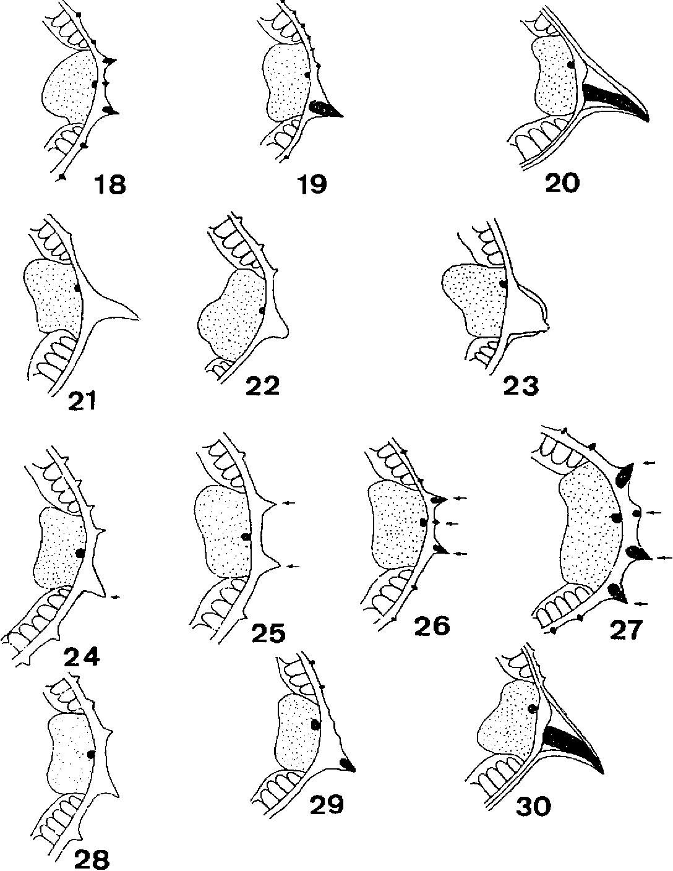 figure 18-30