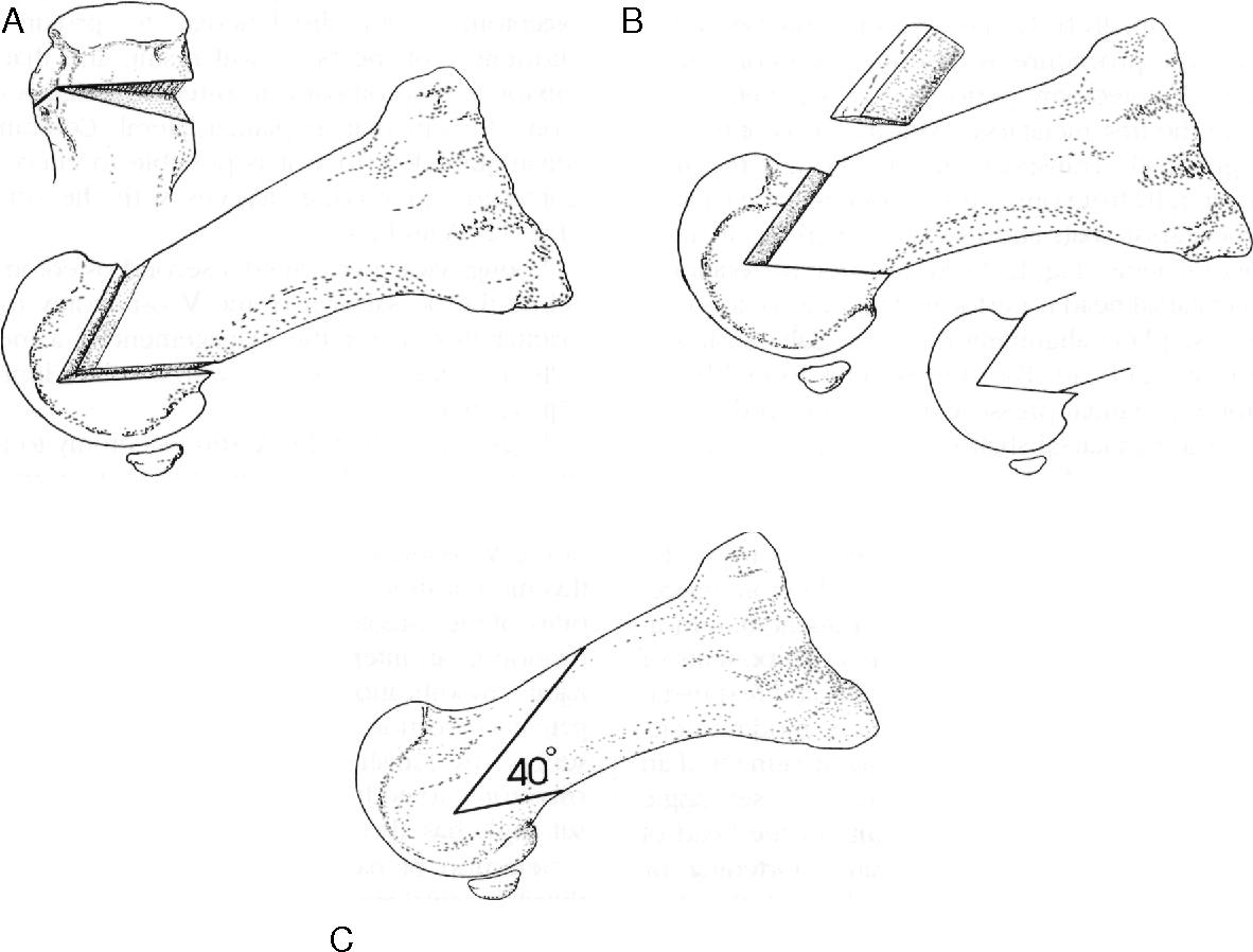 Figure 12-2 from 12 Austin Procedure and Modified Austin