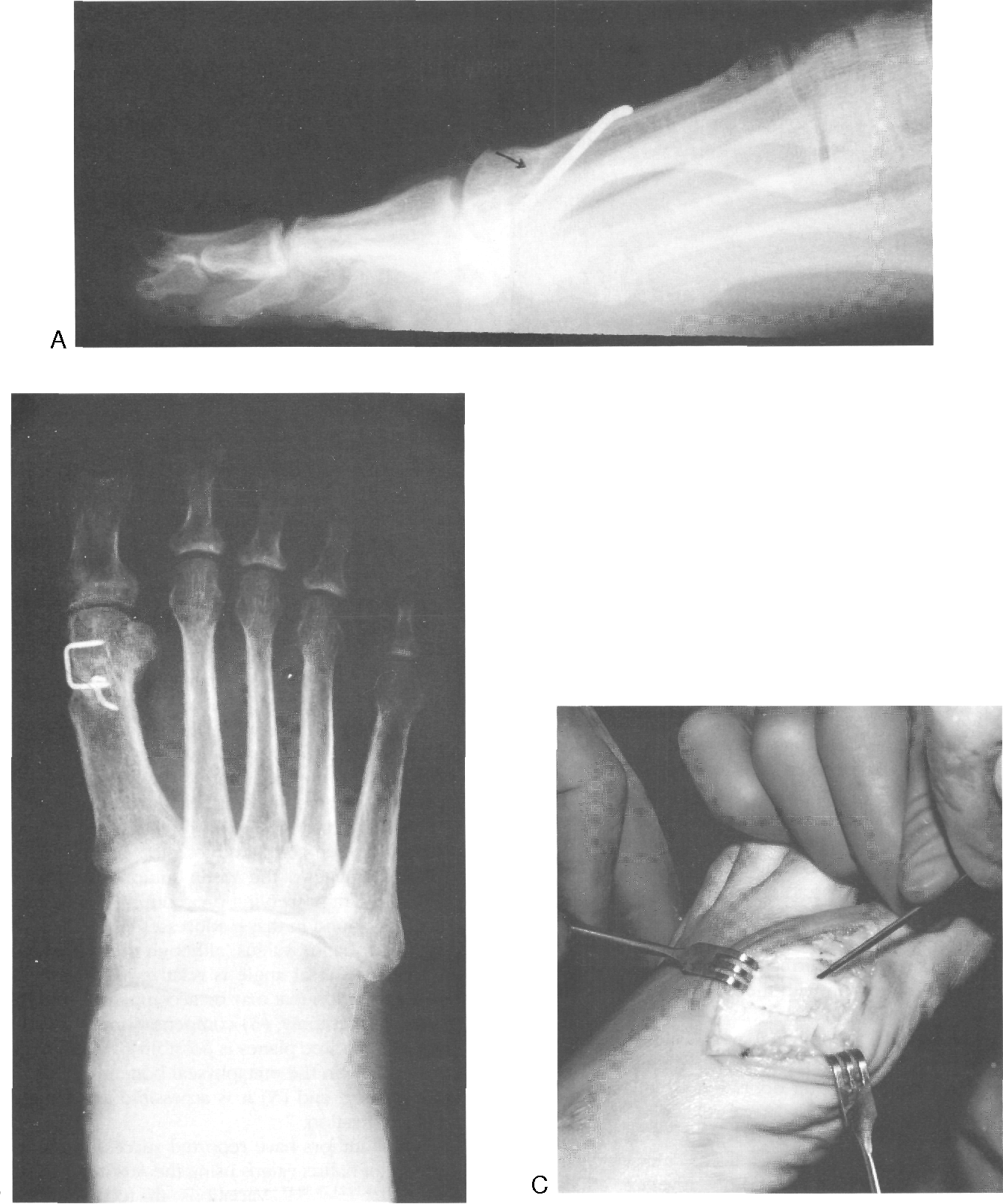 Figure 12-5 from 12 Austin Procedure and Modified Austin