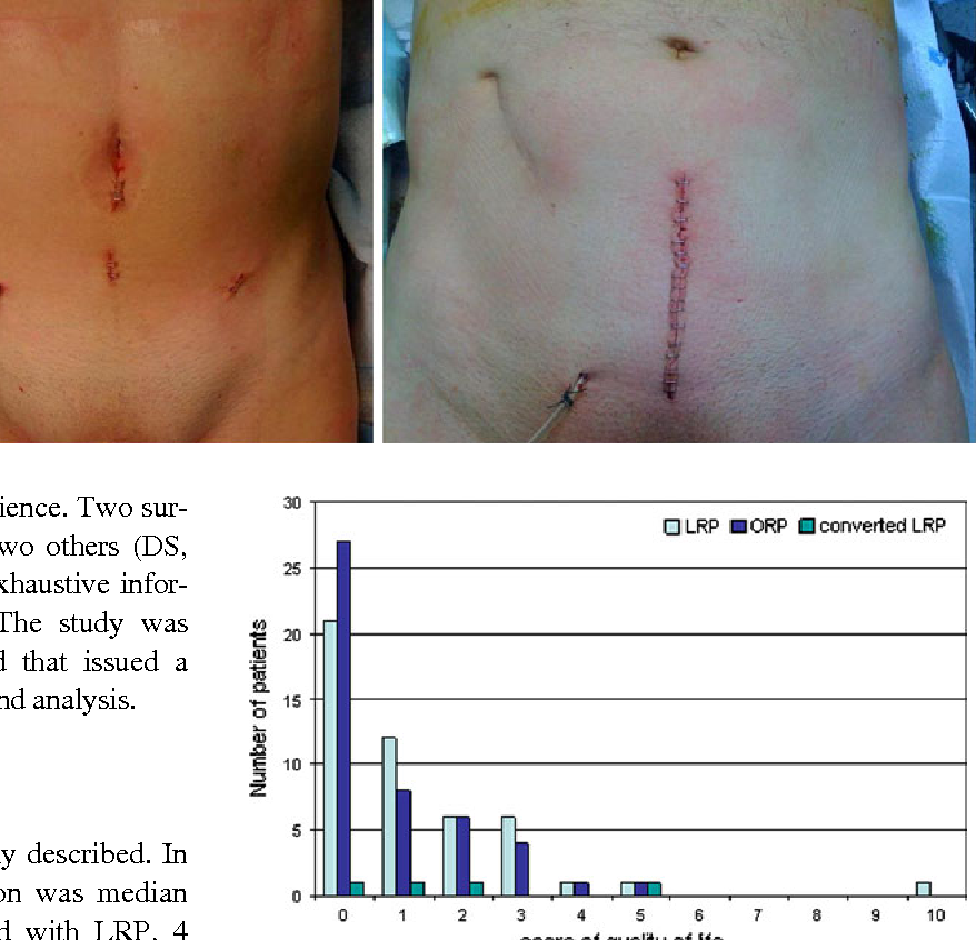 Figure 2 From Prospective Comparison Of Scar Related Satisfaction