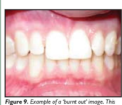 Figure 9 from Digital imaging for the general dental
