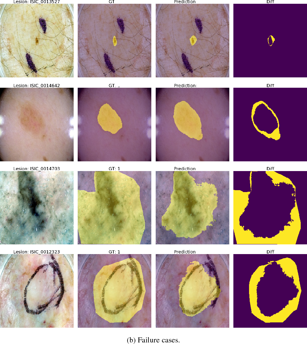 PDF] Skin lesion segmentation using U-Net and good training