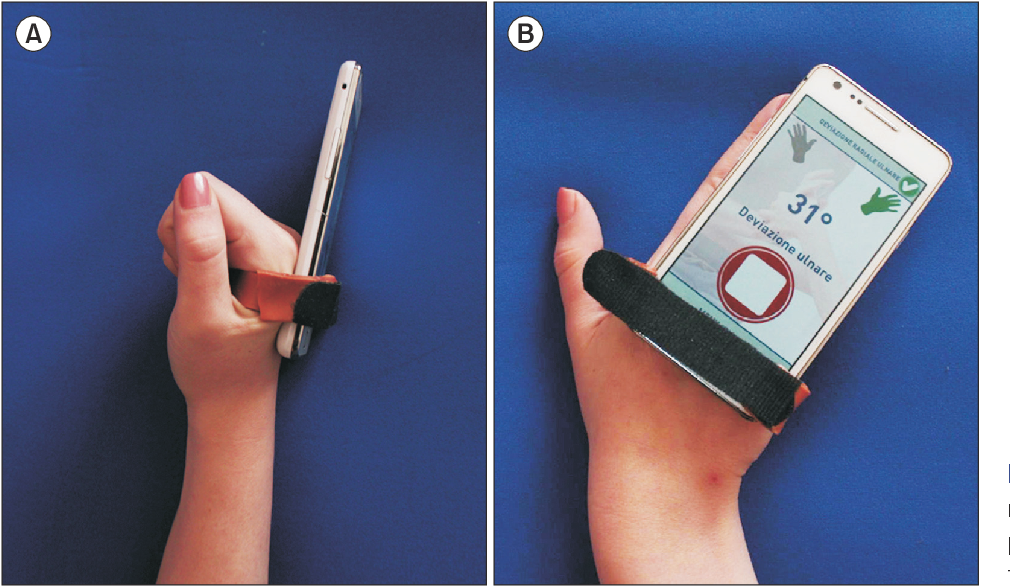 Fig. 1. (A, B) Strip of thermoplastic material was tailored to fit with patient palm for holding mobile phone during therapy session.