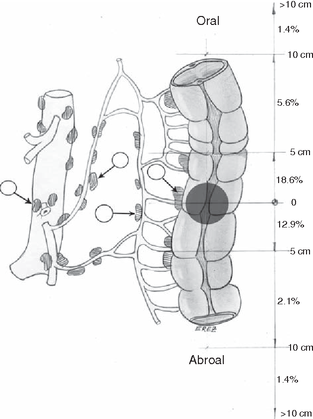 Figure 1 From Surgery Of Colon Cancer Conventional Open And Laparoscopic Surgery Semantic Scholar