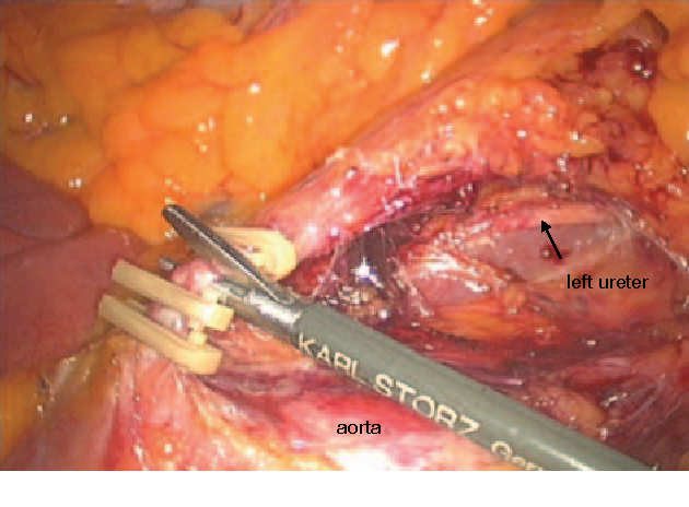 Figure 2 From Surgery Of Colon Cancer Conventional Open And Laparoscopic Surgery Semantic Scholar