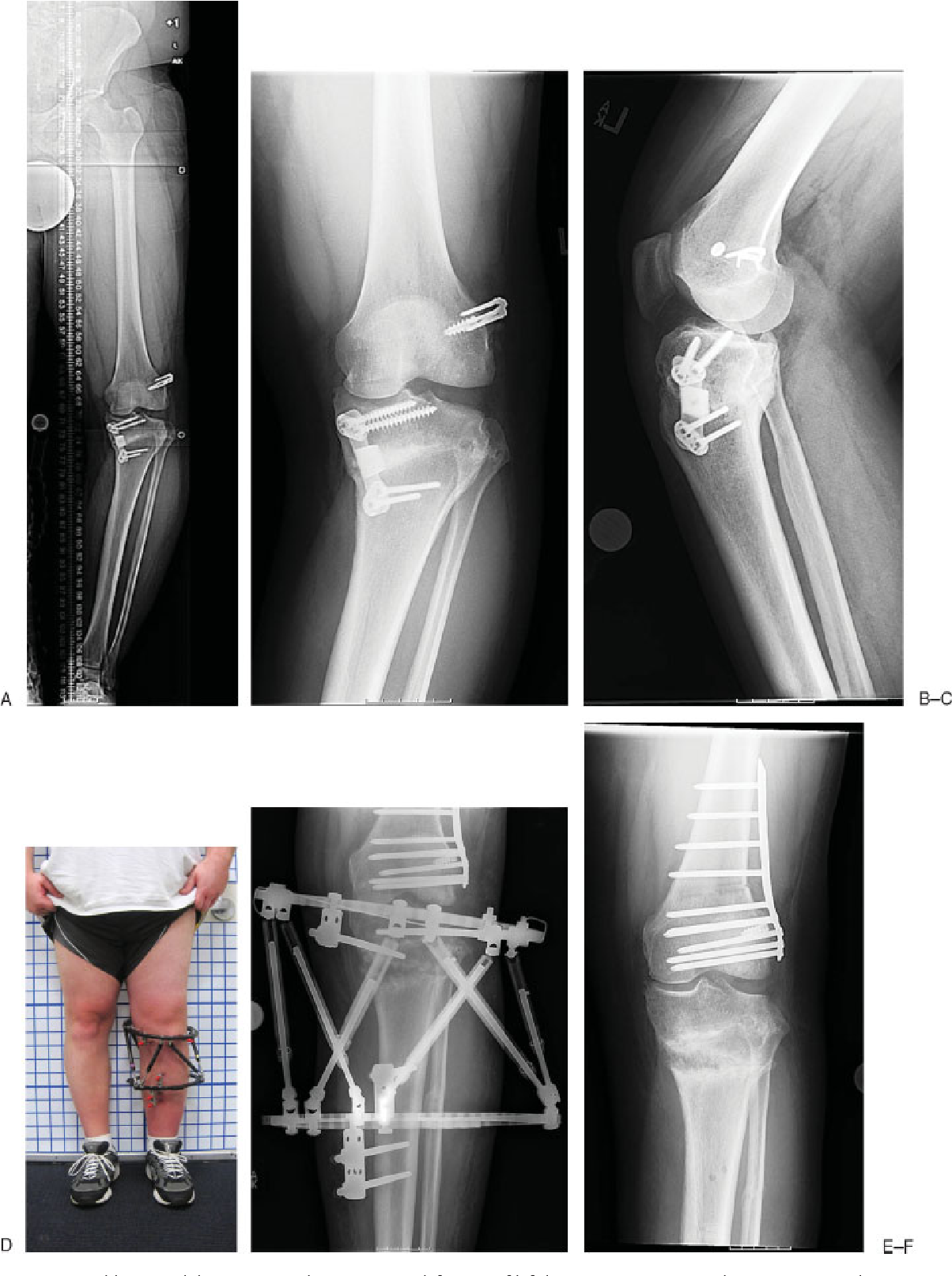 Figure 1 from Correction of proximal tibia varus with