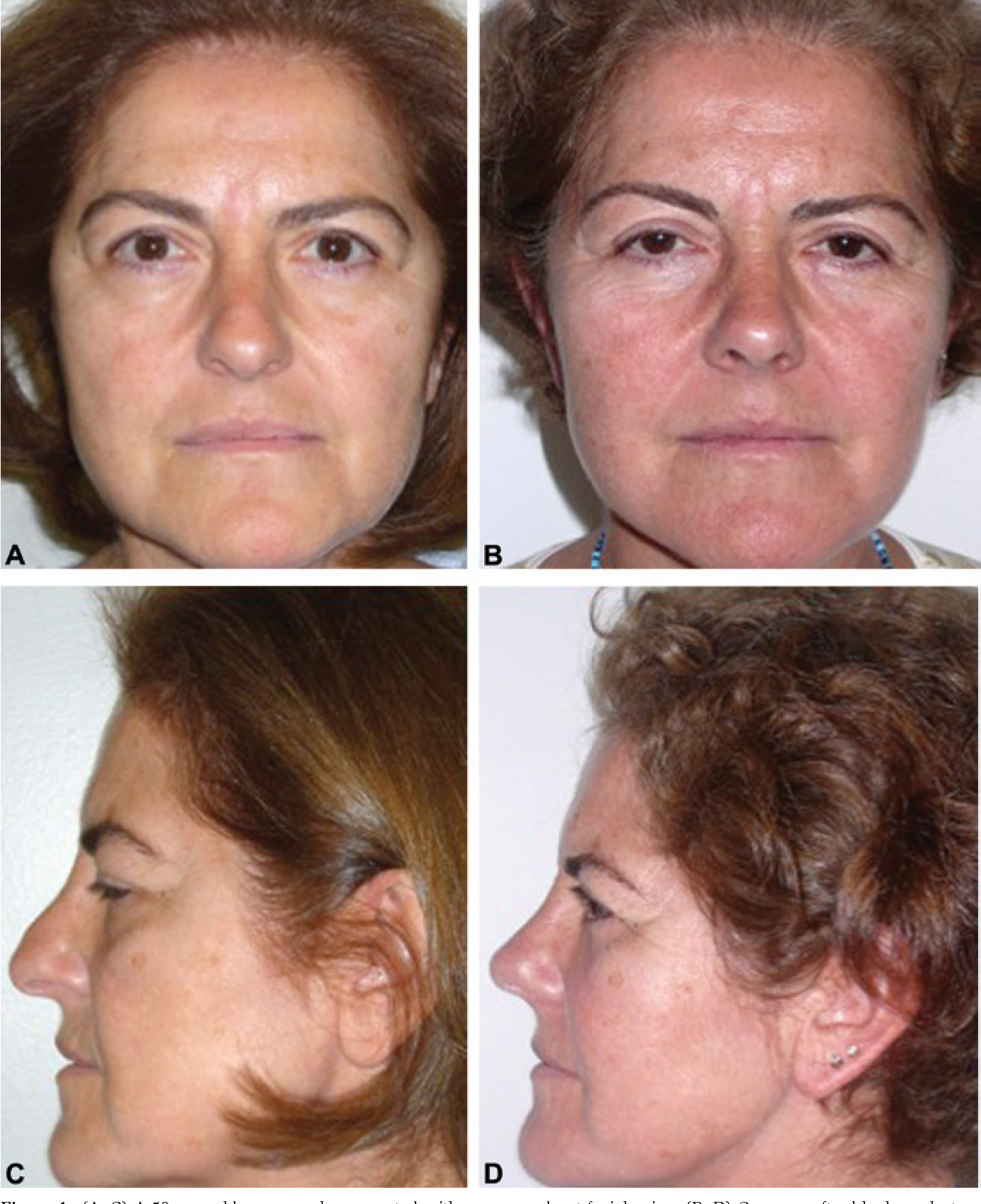 Figure 4 from Shuttle lifting of the nose: a minimally