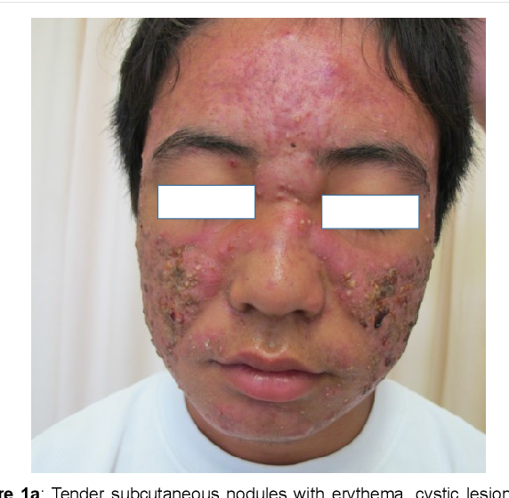 Figure 2 From Comprehensive Multiplexed Therapy For Severe Nodulocystic Acne In Puberty Semantic Scholar
