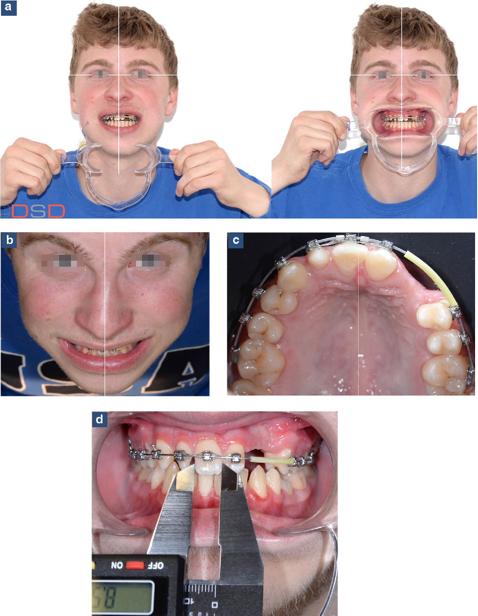 Figure 2 From Benefits Of Digital Smile Design Dsd In The Conception Of A Complex Orthodontic Treatment Plan A Case Report Proof Of Concept Semantic Scholar