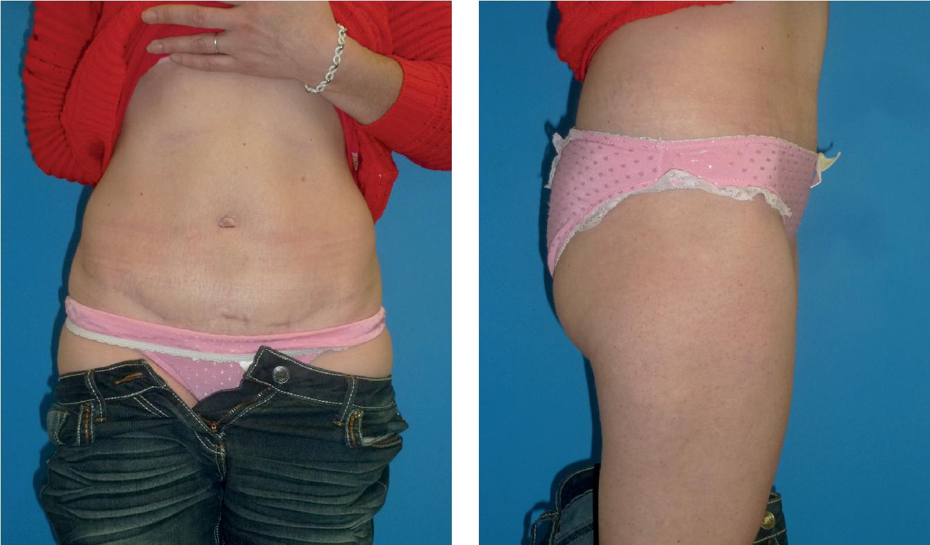 Simultaneous Abdominoplasty and Umbilical Hernia Repair via