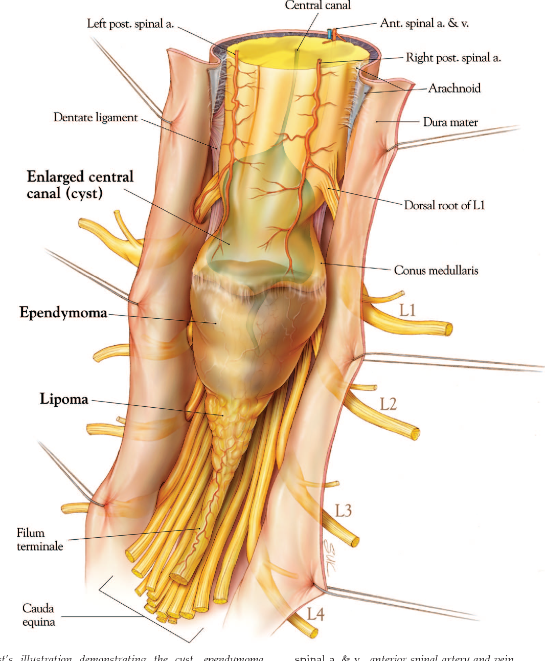 Filum Terminale Pain / The filum terminale is an extension of the pia mater that is attached to the coccygeal segments, whose function is to suspend the filum terminale lipomas represent the most common intraspinal lipoma.