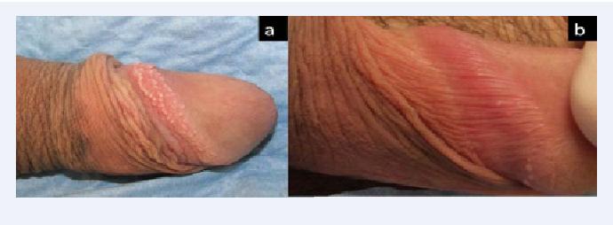 Papules on shaft penile Pimple on
