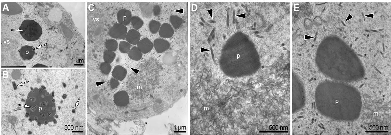 Figure 4. TEM analysis of the morphogenesis of occlusion bodies in the absence of Ac109. Representative images of Sf-9 cells transfected with (A) Bac-PHGFP (B) Bac-ac109Rep or (C–E) Bac-ac109KO bacmids. White arrows indicate enveloped nucleocapsids present in cells transfected with Bac-PHGFP and Bac-ac109Rep. Black arrows show naked nucleocapsids accumulating around empty polyhedra in Bac-ac109KO transfected cells. vs: virogenic stroma, p: polyhedron, m: microvesicles. doi:10.1371/journal.pone.0046146.g004