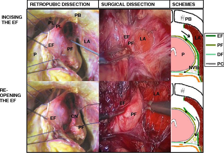 Fascia Surrounding The Prostate Clinical And Anatomical Basis Of The Nerve Sparing Radical Prostatectomy Semantic Scholar
