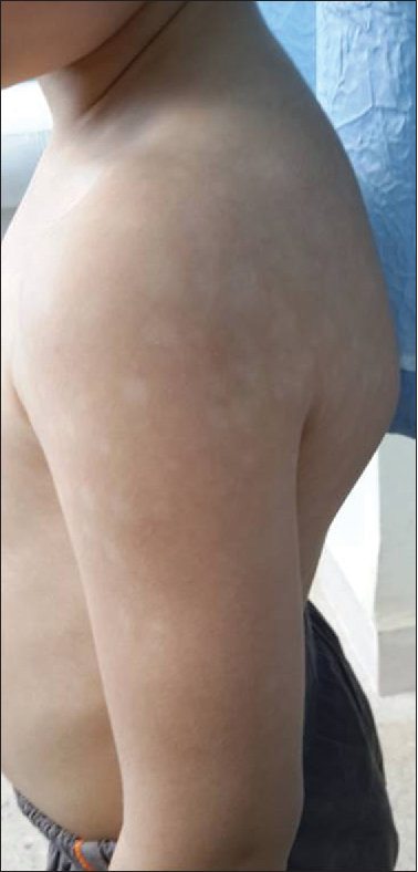 Figure 1 From Childhood Vitiligo Clinical Epidemiological Profile Semantic Scholar