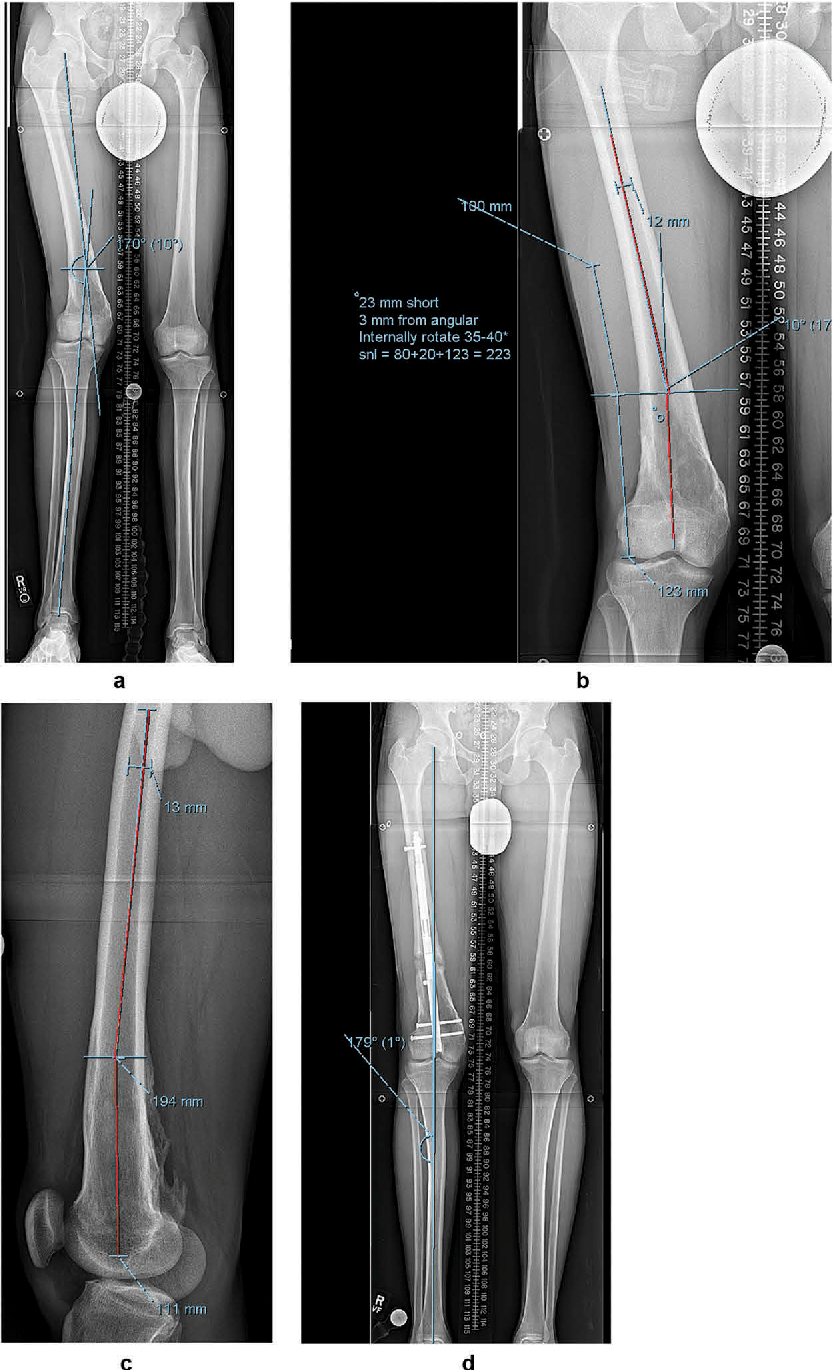 Figure 2 from Retrograde magnetic internal lengthening nail