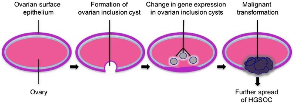 Cells Of Origin Of Ovarian Cancer Ovarian Surface Epithelium Or Fallopian Tube Semantic Scholar