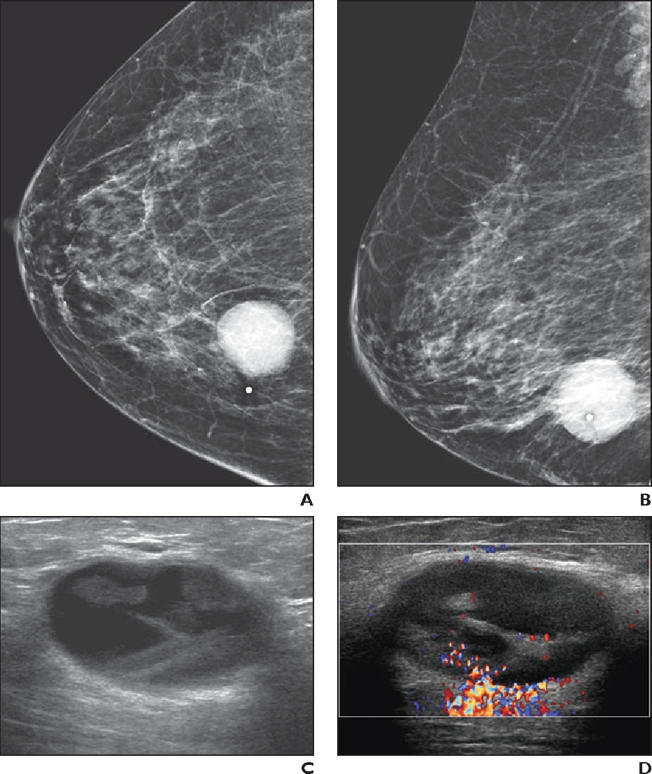 Figure 1 From Cystic Masses Of The Breast Semantic Scholar