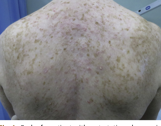 Figure 1 From Skin Cancer Risk Nonmelanoma Skin Cancers Melanoma In Vitiligo Patients Semantic Scholar
