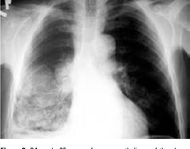 Figure 1 From Talc Slurry Pleurodesis Via Chest Tube In Department Of Pulmonology A 24 Case Study Semantic Scholar
