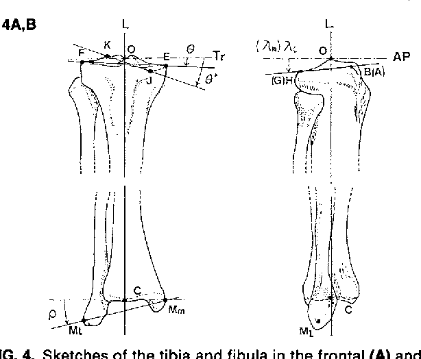 Figure 4 from Tibial anatomy and functional axes  - Semantic