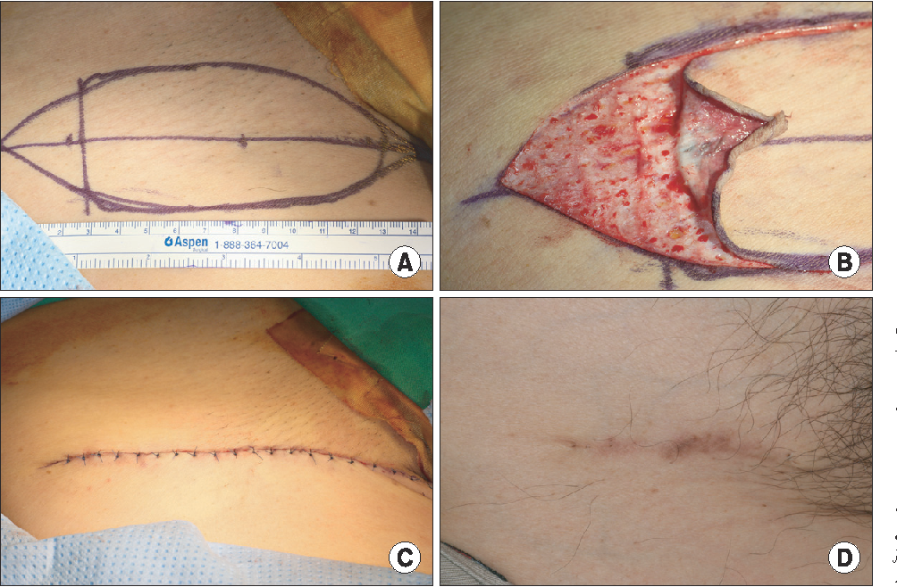 Pdf Full Thickness Skin Grafts From The Groin Donor Site Morbidity And Graft Survival Rate From 50 Cases Semantic Scholar