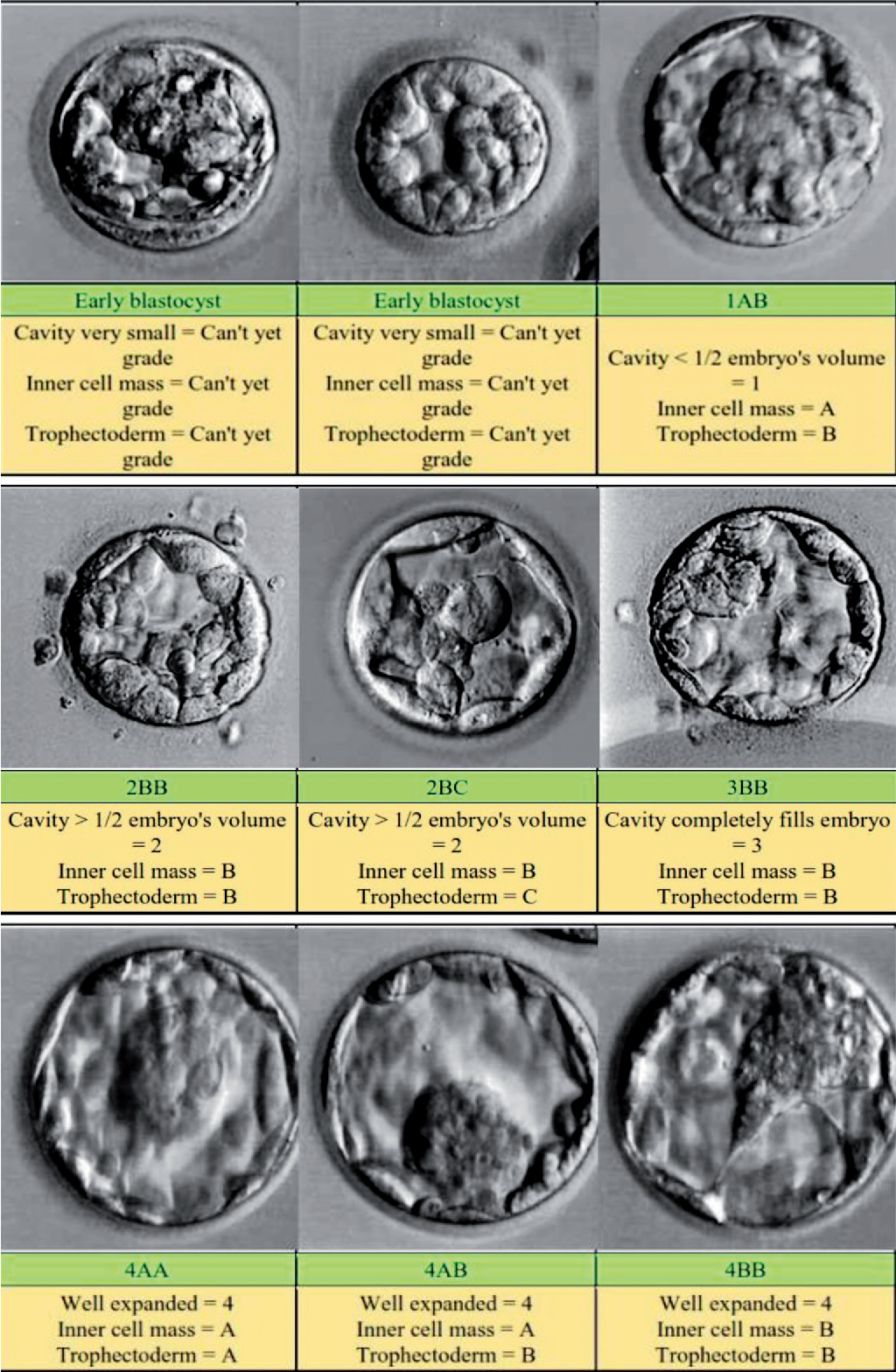 Figure 3 from Non-invasive methods for embryo selection