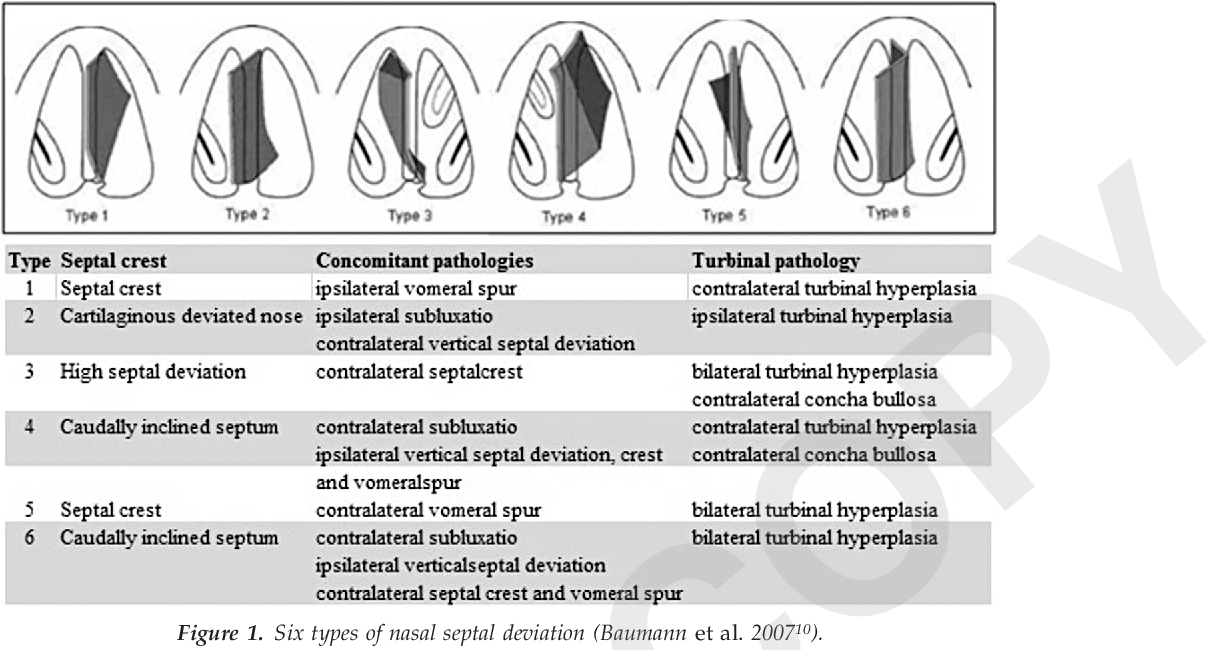 Objective And Subjective Evaluation Of Operation Success In Patients With Nasal Septal Deviation Based On Septum Type Semantic Scholar
