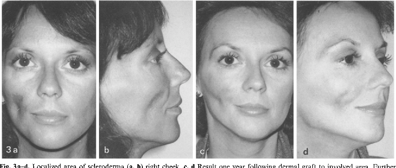 Figure 3 from Treatment options in hemifacial atrophy